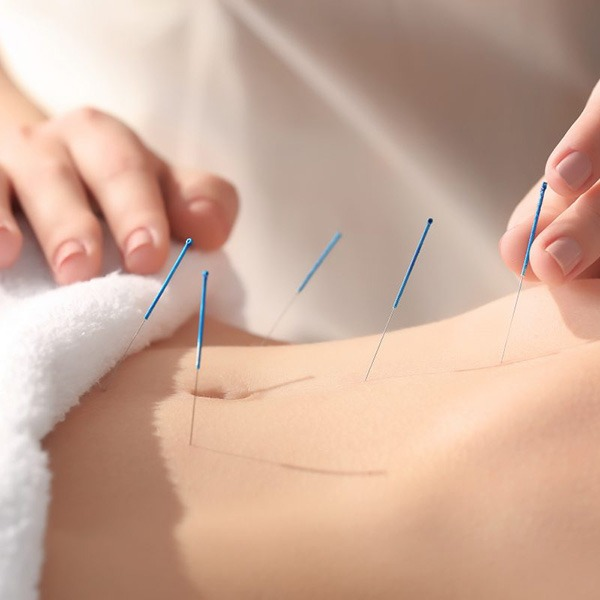 Acupuncture for palliative cancer pain management: systematic review